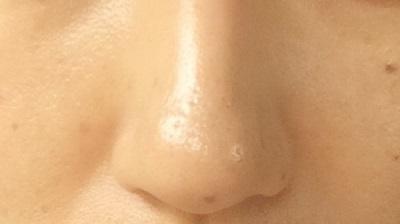 鼻のテカリ