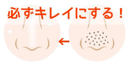 黒ずみ毛穴とたるみ毛穴の原因と対策
