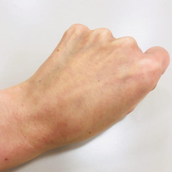 ニキビ卵白洗顔の効果とやり方